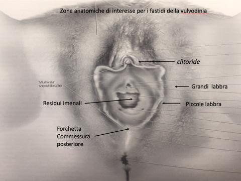 vulvodinia sintomi come guarire